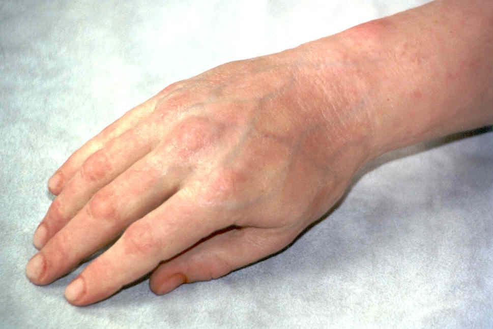 Prosthetic Arm 1