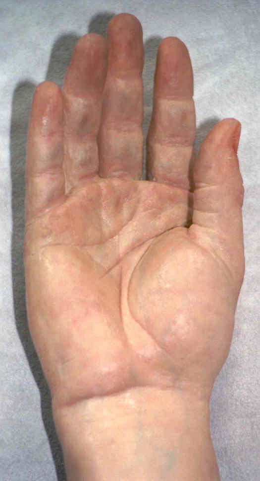 Prosthetic Arm 2