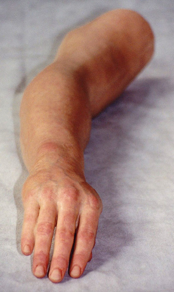 Prosthetic Arm 3