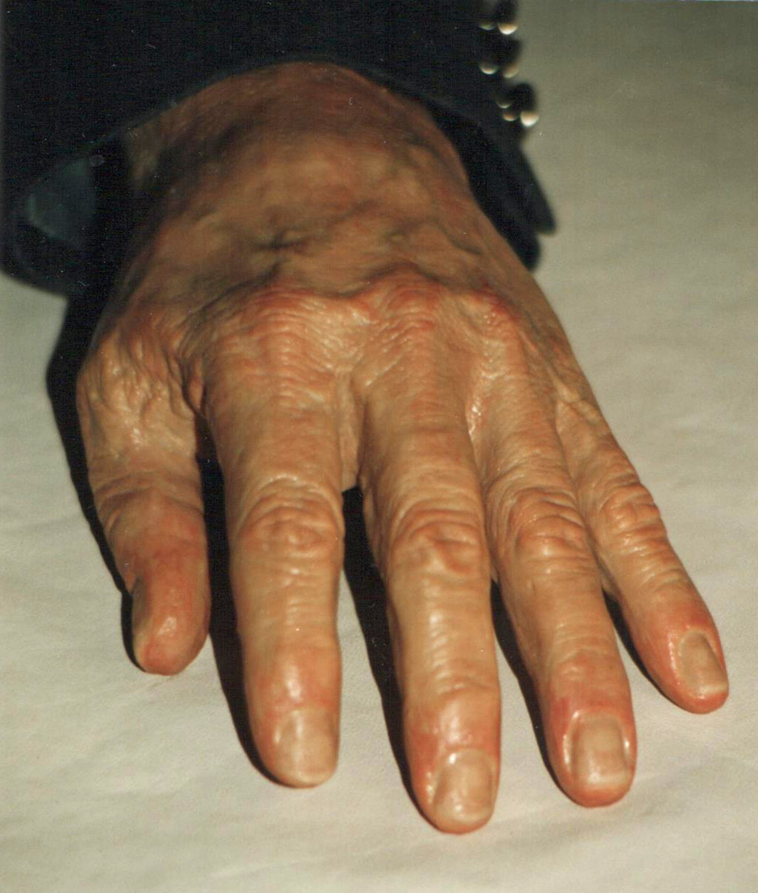 Prosthetic Replacement Hand